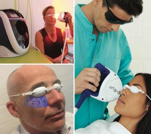 IPL treatment For Dry Eye Syndrome