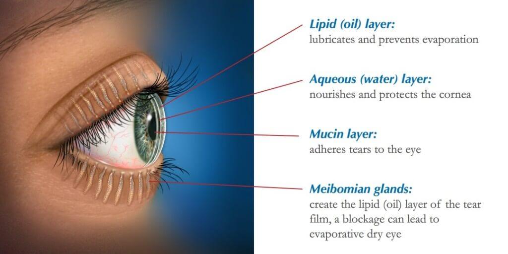 Dry Eye Treatment Surrey Hills Blephadex Here In2eyesin2eyes